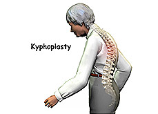 Kyphosis Surgery Cost in India